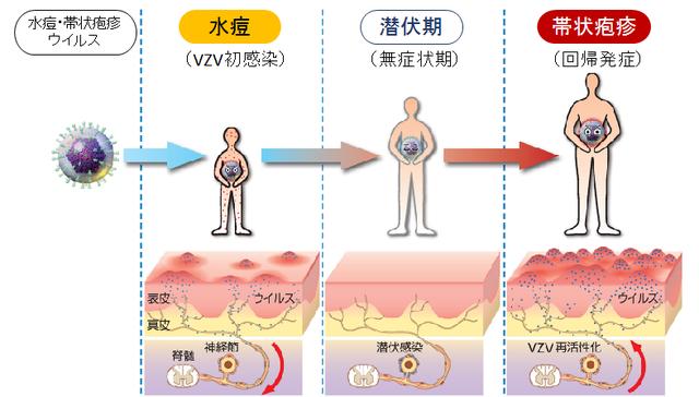 図:帯状疱疹の発症を示す図。水疱瘡ウイルスは水疱瘡にかかっ