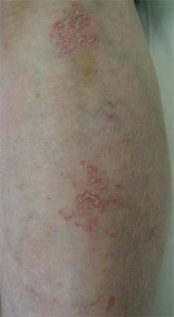 発疹 熱 なし 赤い なし かゆみ