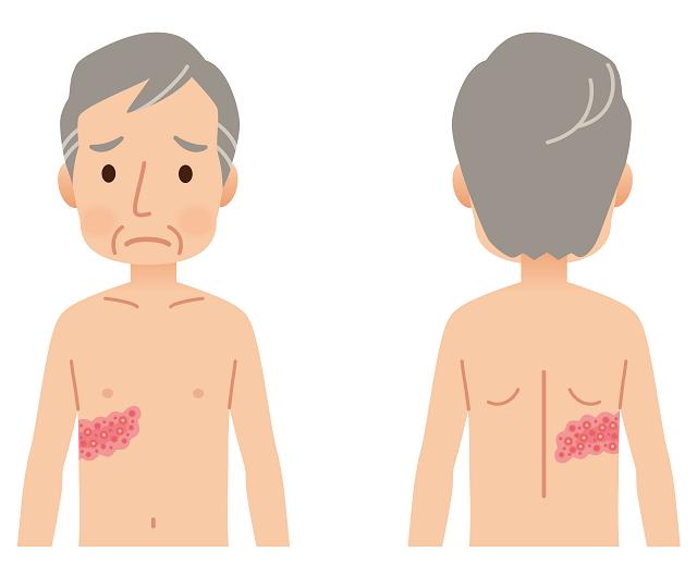 軽い 帯状 疱疹 初期 画像