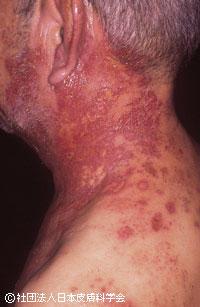 写真1:入院治療が必要になるケース1 多神経皮膚文節の帯状疱疹写真:公益社団法人日本皮膚科学会1)