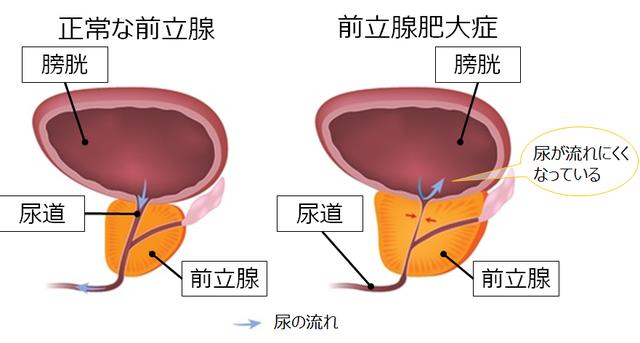前立腺肥大症 | 健康長寿ネット