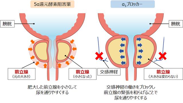 前立腺肥大症